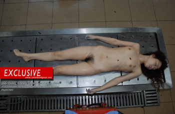Dead Girl Autopsy Stark Naked on Morgue Table | Goregrish