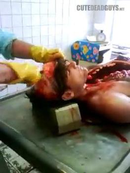 Nice Girl autopsy cut open