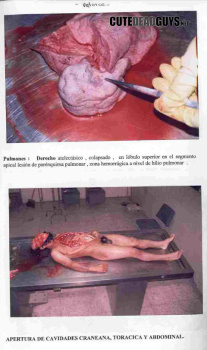 autopsy good pathologist Part 5 autopsy procedures 141 section 501 autopsy protocol caution: the pathologist will, or may, offer both a cause and manner of death in his/her report of the post.